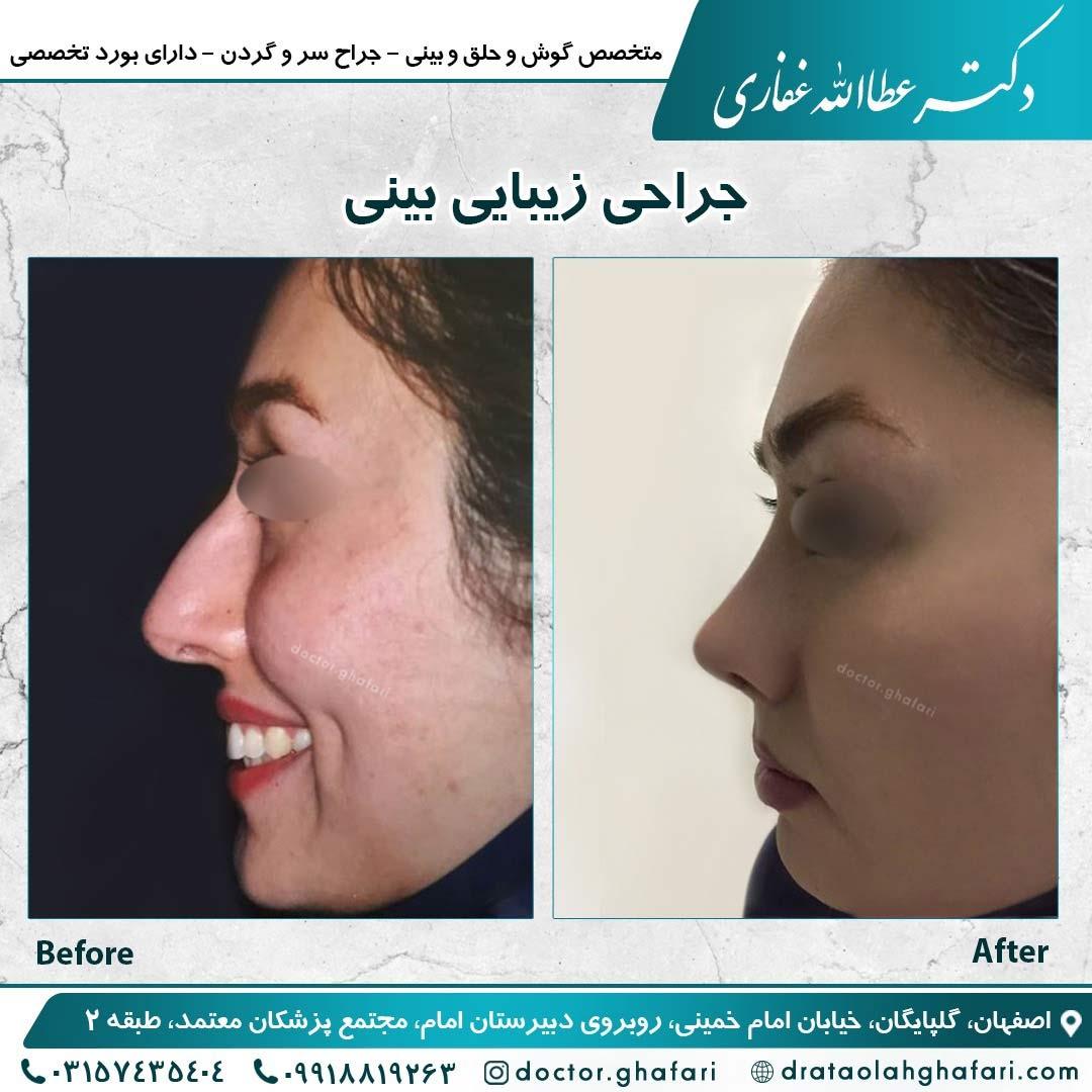 جراحی زیبایی بینی 1
