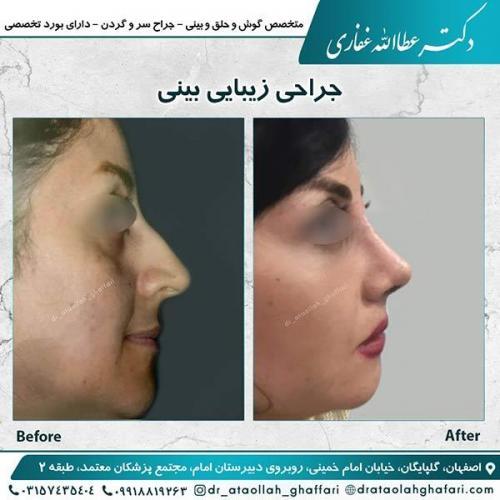 جراحی-بینی-اصفهان-12