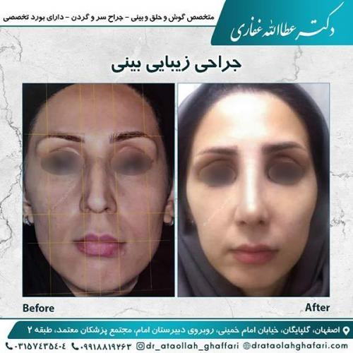 جراحی-بینی-اصفهان-13