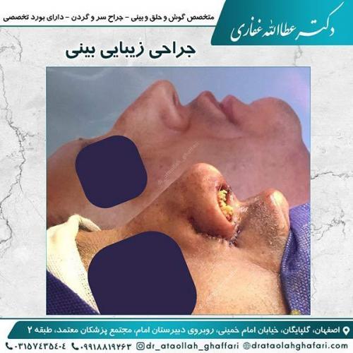 جراحی-بینی-اصفهان-14