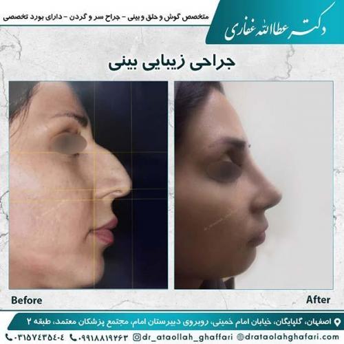 جراحی-بینی-اصفهان-2