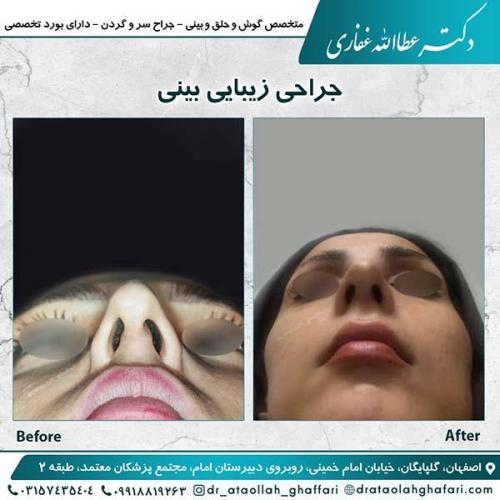 جراحی-بینی-اصفهان-3