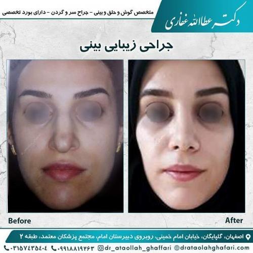 جراحی-بینی-اصفهان-4