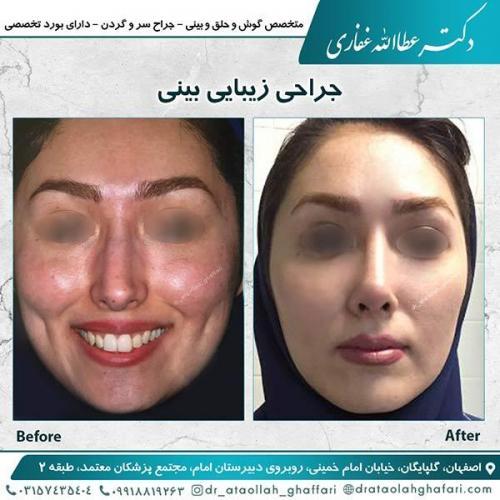 جراحی-بینی-اصفهان-6