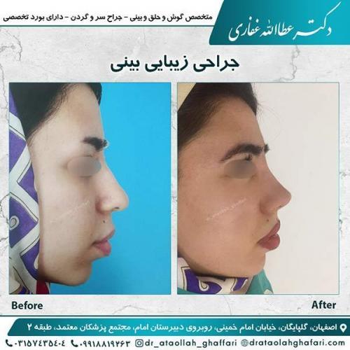 جراحی-بینی-اصفهان-9
